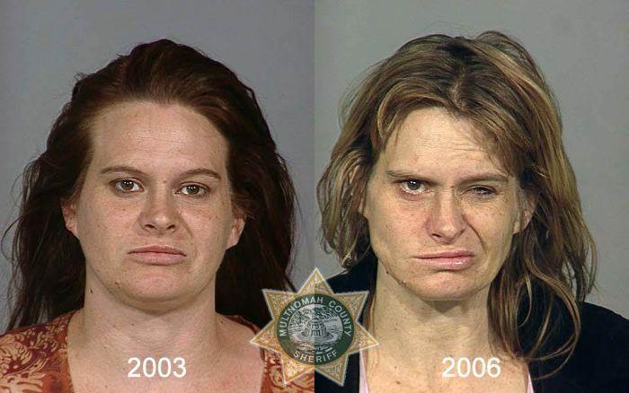 «Visages de la méth(amphétamine)», une série de portraits anthropométriques de consommateurs de cette drogue, avant et après.