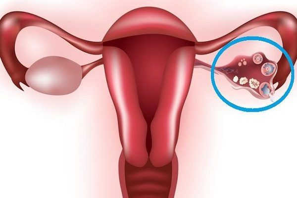 What Are Ovarian Cysts? These are fluid-filled sacs located in the ovary that occur and are formed during the ovulation period in women. What Causes Ovarian Cysts? Ovarian cysts can be causes by; Pelvic infections Pregnancy Hormonal issues Endometriosis Symptoms Of Ovarian Cysts? Ovarian cysts are mainly harmless but they can lead to other symptoms […]