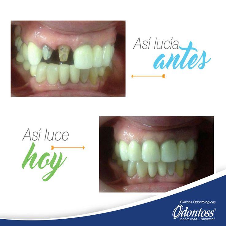 Rehabilitación con coronas metal porcelana del diente 11 y 12. Realizado por el Dr, Juan Diego Medina en nuestra sede de Laureles.