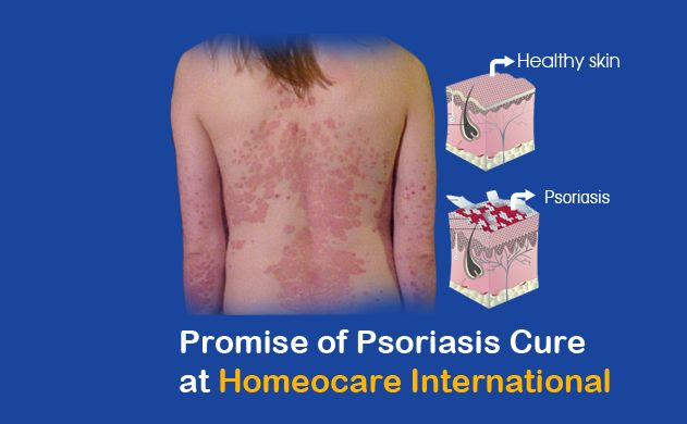 Psoriasis is a chronic skin diseases in which it effects the skin cells.  Psoriasis causes due to the infections and improper working of immune system results in inflammation of skin cells. Through homeopathy Psoriasis can be naturally curable without any side effects. Homeocare International is the world class Homeopathy health care clinic in Homeopathy improve your Immune system from all chronic Diseases.