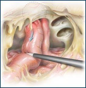 Ομφαλοκήλη - Λαπαροσκοπική τοποθέτηση πλέγματος