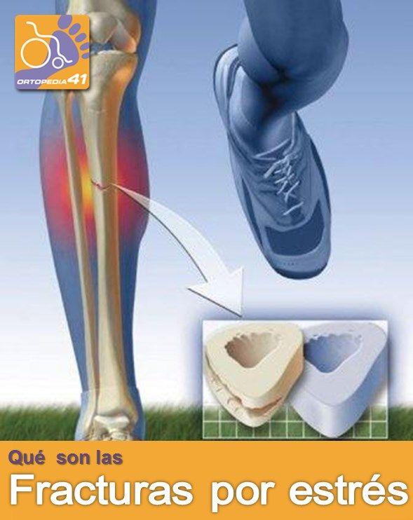 """El hueso está formado por una capa más superficial (hueso cortical) y una parte profunda (hueso esponjoso). El hueso cortical forma una capa externa más compacta y que constituye un soporte y una protección. El hueso esponjoso por el contrario no es tan compacto y está formado por un entramado trabecular que se entrelaza entre sí formando una especie de """"tabiques"""". Estos """"tabiques"""" o trabéculas pueden fracturarse como consecuencia de un fuerte impacto o por peq"""