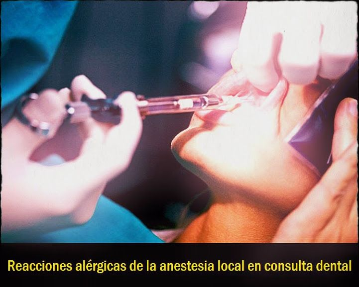 Reacciones alérgicas de la anestesia local en consulta dental | OVI Dental