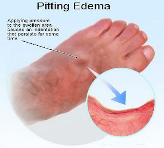 Best Natural Supplement For Edema