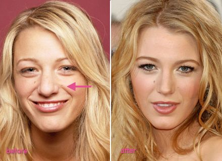 Blake Lively before and after