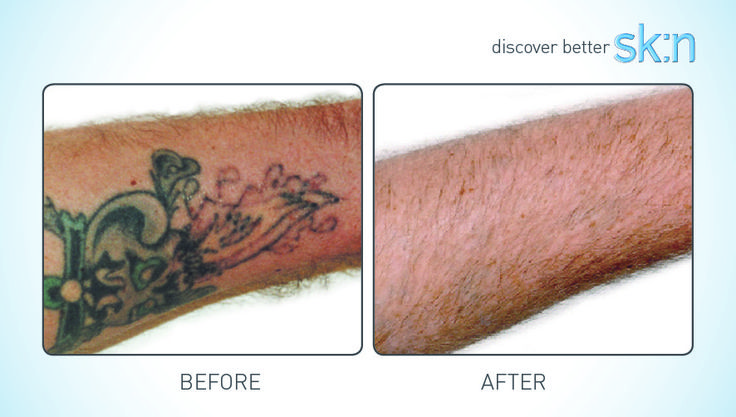 Laser Tattoo Removal at sk:n https://www.sknclinics.co.uk/treatments-and-pricing/laser-tattoo-removal