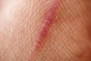 close up scar on skin - Baston/E+/Getty Images