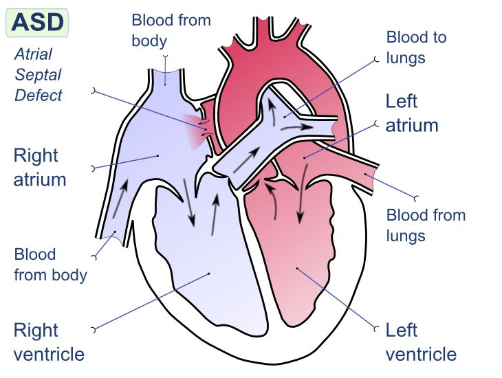 Atrial-Septal Defect (ASD). Congenital, acyanotic, heart defect in which the atrial septum does not fully close, and oxygenated blood from the left atrium is shunted to the right atrium. The majority of ASDs are well-tolerated, and as long as they remain left-to-right (thus acyanotic), they can be asymptomatic. A long-term increase in pulmonary blood flow can eventually lead to pulmonary hypertension, and a shunt reversal.  Large or symptomatic ASDs are surgically corrected early in life.