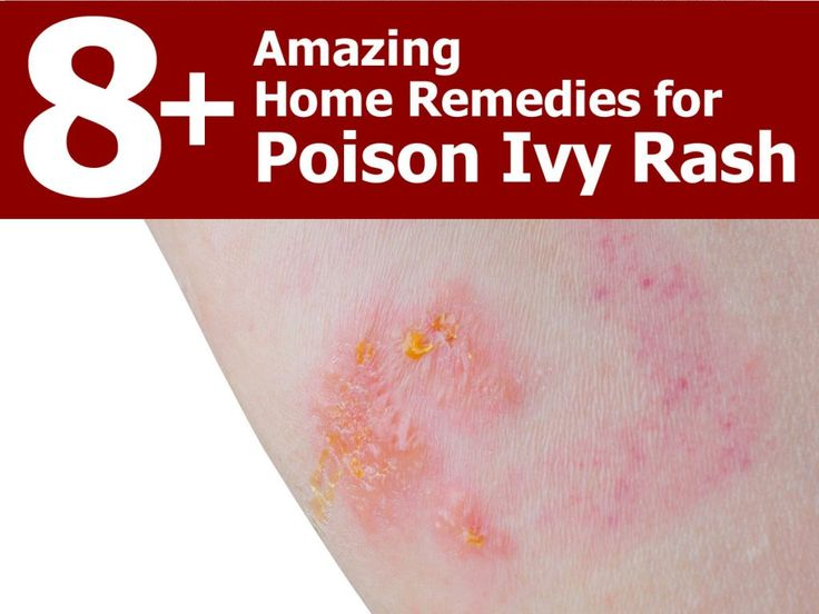 Coming into contact with the poison ivy plant can cause an itchy and irritating rash in about 50 percent of people. The rash stems from a urushiol – an oily...