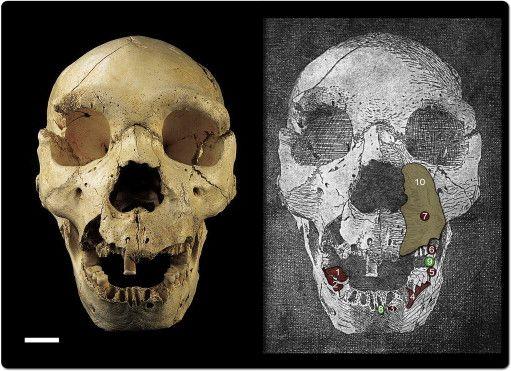 Orofacial pathology in Homo heidelbergensis: The case of Skull 5 from the Sima de los Huesos site (Atapuerca, Spain)
