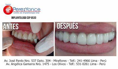 Implantes Dentales Perú