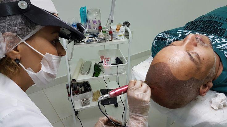 Micropigmentação couro cabeludo by VISU