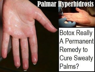Palmar Hyperhidrosis - Botox Really A Permanent Remedy to Cure Sweaty Palms?…
