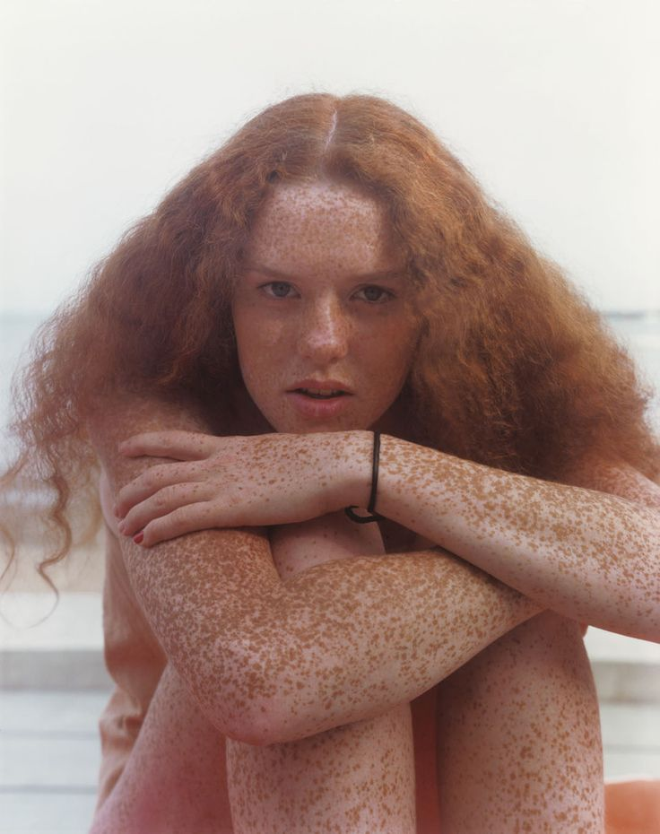 Joel Meyerowitz. Redheads, 1991.  Freckles, so lovely yet often quite difficult to capture well in a photograph