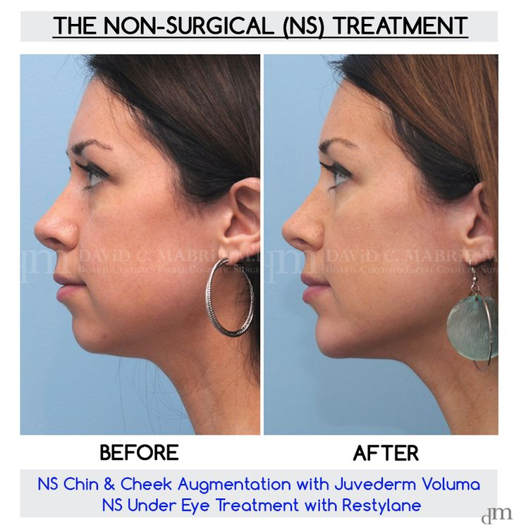 Non-Surgical before and after results www.sculptmd.com  514.728-5783