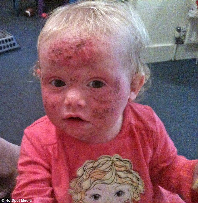 Bethany Wagstaff, now five, suffers fromphotoaggravated eczema, which causes a red, itchy rash and sores to form all over the body if she is exposed to sunlight. She is pictured as a baby
