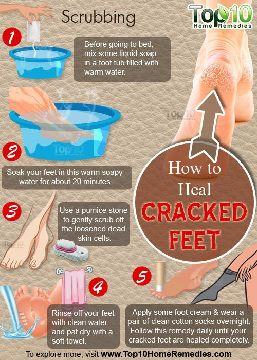 HOW TO HEAL CRACKED FEET - Creativetips.ORG