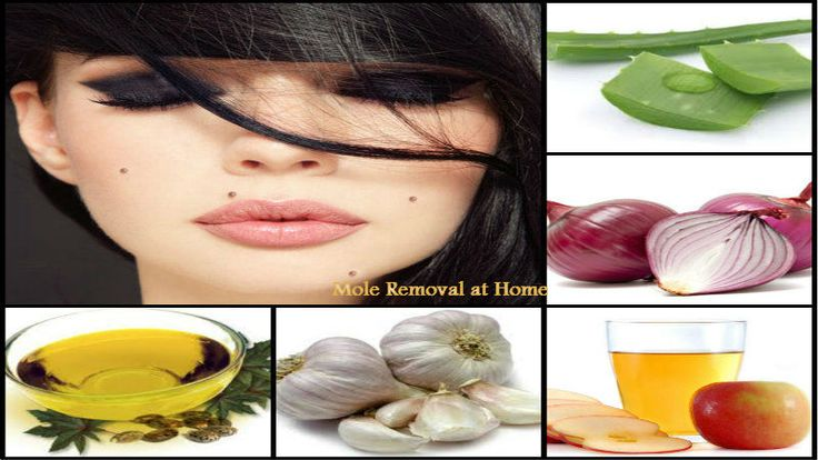 ✿✿Mole Removal at Home✿✿ Read Full Tips From Here:http://goo.gl/Cz6HAJ  #Beauty #HomeRemedies