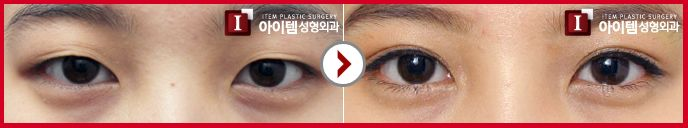 Plastic surgery - eye surgery - double eyelid Double eyelid surgery with Natural Adhesion Method (Non-incision Method) This procedure is to make natural looking double eyelids through natural adhesion by removing some fat and muscle. Like non-incisional buried suture method, it leaves no visible scars. #Item#plasticsurgery#cosmeticsurgery#korea#beauty#plasticsurgerybeforeandafter#eyes#eyesurgery#doubleeyelidsurgery