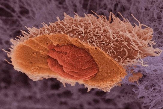A scanning electron micrograph of a squamous cell carcinoma, a type of skin cancer. The cell has been frozen and split open to reveal its nucleus. Image: Anne Weston, LRI, CRUK. Wellcome Images