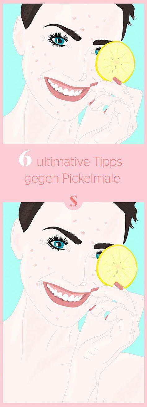 Tipps Gegen Pickelmale