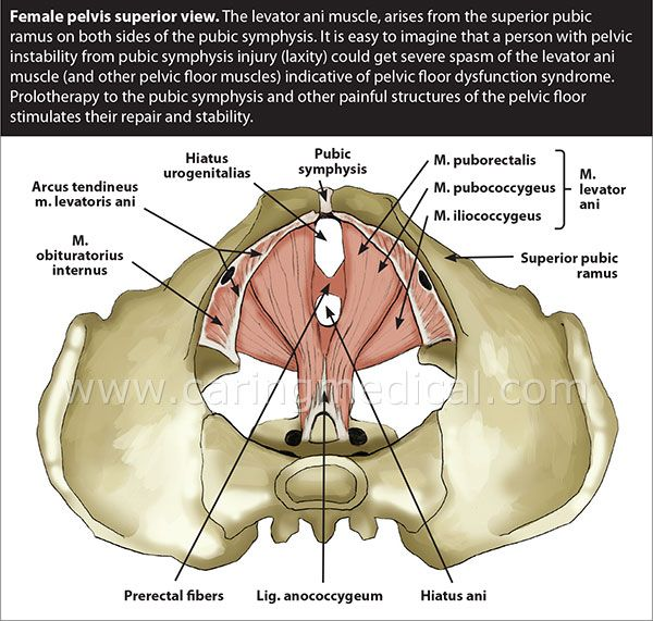 Prolotherapy for pelvic organ dysfunction