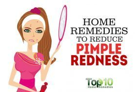 Home Remedies to Reduce Pimple Redness