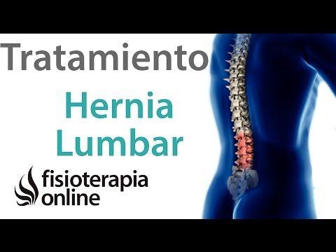 Tratamiento de la hernia discal lumbar mediante automasajes, estiramientos y ejercicios | Fisioterapia Online