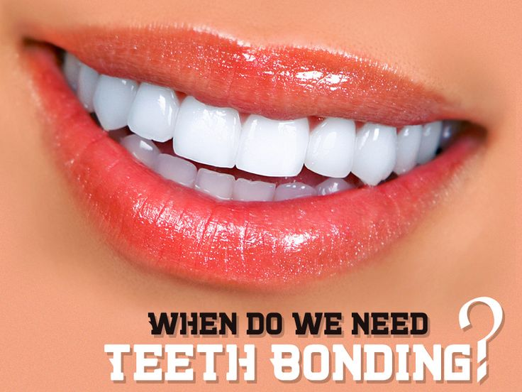 Teeth Bonding help to improve the smile by correcting the excess space between the teeth,  if  you have chipped, broken, stained or cracked teeth. Visit our office for more information: www.cristianchirladmd.com