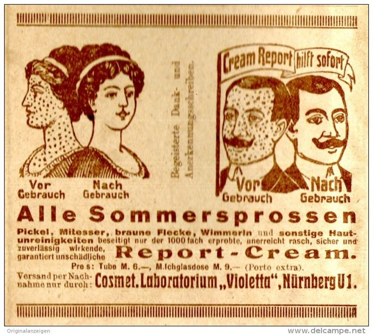 """Original-Werbung/ Anzeige 1921 - REPORT-CREME GEGEN SOMMERSPROSSEN / """"VIOLETTA"""" NÜRNBERG - ca. 90 x 60 mm"""