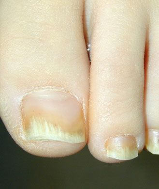 """Yellow nails certainly don't look pretty, and what causes the hue is even grosser: ""Thickened nails, with or without a yellow-ish tone, are characteristic of fungal infections that generally traverse the entire nail bed,"" Dr. Agarwal says. She adds that topical medication is often no help since the infection is in the nail bed and underlying nail plate. Your doctor can prescribe an oral med, which will reach the entire breadth of the infected nail""-----pinned by Annacabella"