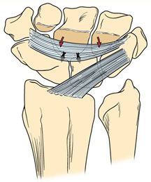 Scapholunate Ligament Tear - Wrist Conditions and Treatments - Midwest Orthopaedics at Rush