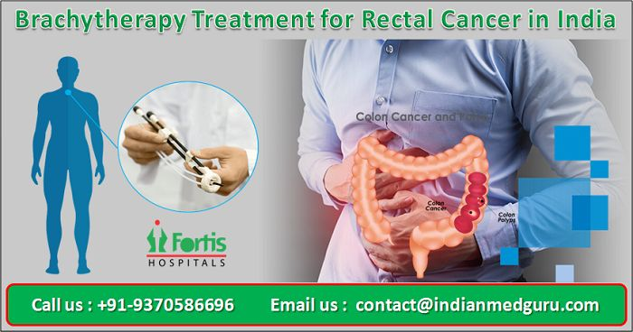 brachytherapy India, what is cost brachytherapy in India, low cost brachytherapy India, brachytherapy advantages India, brachytherapy risks, brachytherapy alternatives, brachytherapy conditions treated, brachytherapy cost in india, brachytherapy centres in india, cost of brachytherapy for prostate cancer,Brachytherapy treatment for Rectal Cancer in India, cost of Brachytherapy treatment for Rectal Cancer in India, Brachytherapy treatment for Rectal Cancer cost in India