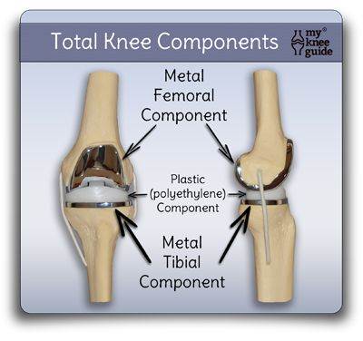 artificial knee prothesis replacement The four main types of knee replacement surgery are total knee  our new arthritis virtual assistant uses artificial intelligence to answer your arthritis related.