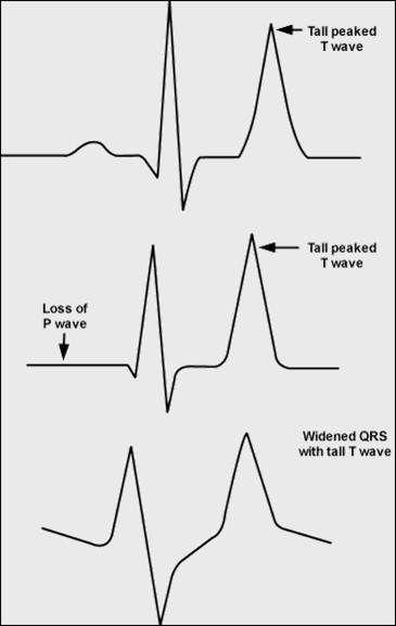 The EKG below demonstrates Peaked T waves of hyperkalemia