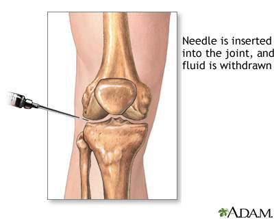 "Joint aspiration - MedlinePlus - ""Synovial fluid analysis is a series of tests performed on synovial (joint) fluid to help diagnose and treat joint-related abnormalities. To obtain a synovial fluid sample, a needle is inserted into the knee between the joint space. When the needle is in place the synovial fluid is then withdrawn. The sample is sent to the lab for analysis."""