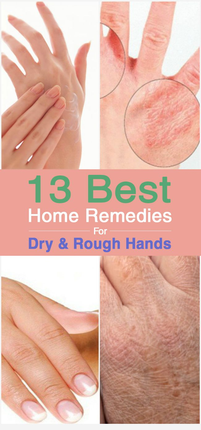 13 Best #Home #Remedies For Dry And Rough Hands