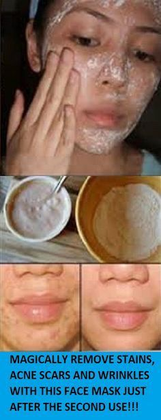 Magically Removes Stains, Acne Scars And Wrinkles With This Face Mask Just After The Second Use