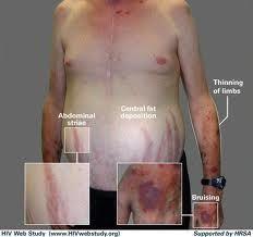 personas presentan el síndrome de Cushing debido a que sus cuerpos producen demasiado cortisol, una hormona que normalmente se produce en las glándulas suprarrenales