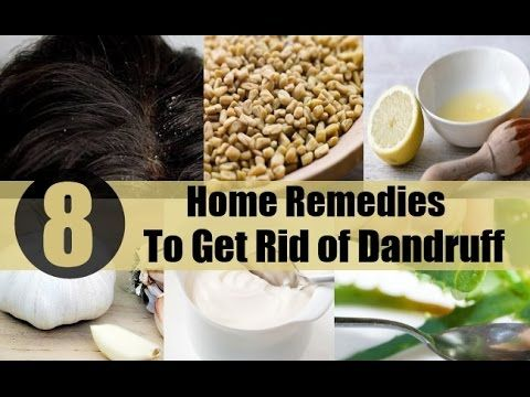 How to cure dandruff /How to get rid of dandruff fast