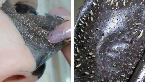 1 Andate Via Punti Neri. I punti neri ( o comedoni ) sono una conseguenza dell'acne, possono variare il proprio colore dal giallastro al più comune nero, c