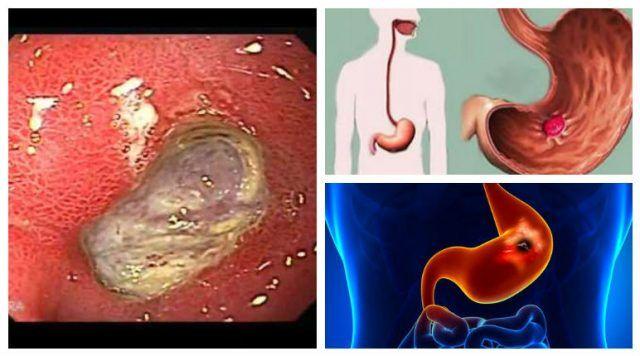 como curar las ulceras del estomago