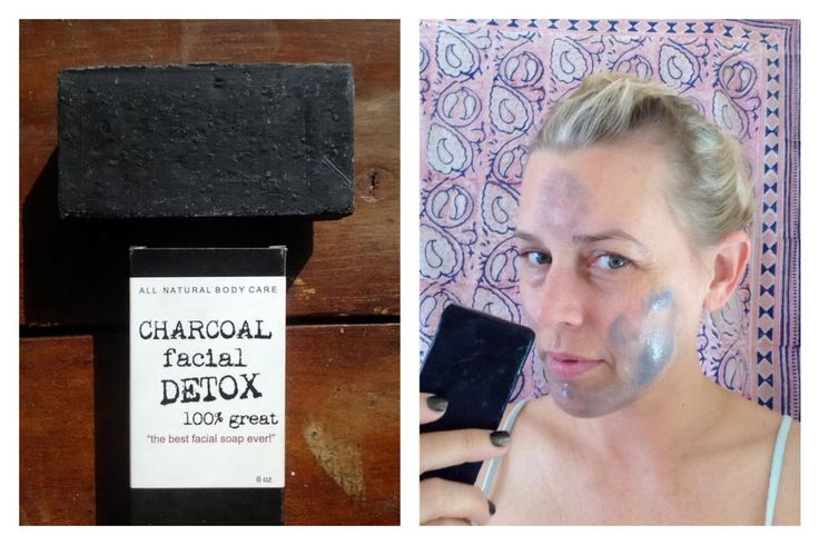 THIS IS NOT A DRILL: Activated Charcoal Soap Healed My Adult Acne (For Now...). But nobody (not even me) knows why.