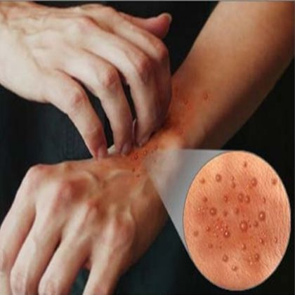 7 Best Anti Skin Rash Foods - Apparently, after never having any issues my whole life, my skin has decided to become super sensitive to everything.