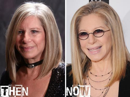 Barbra Streisand Plastic Surgery Before Amp After Http