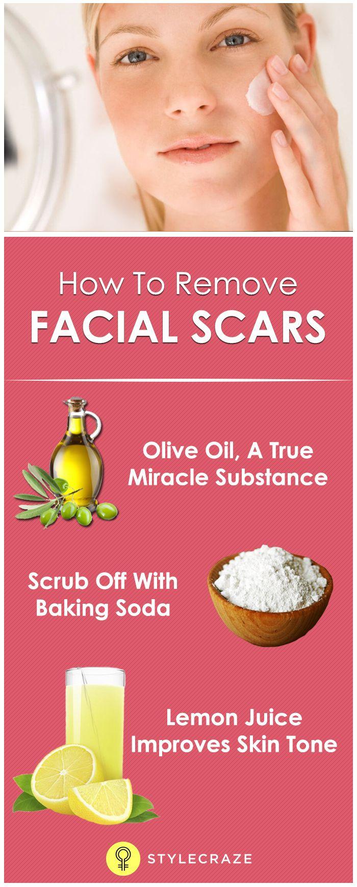 How To Remove Facial Scars NaturallyStylecraze