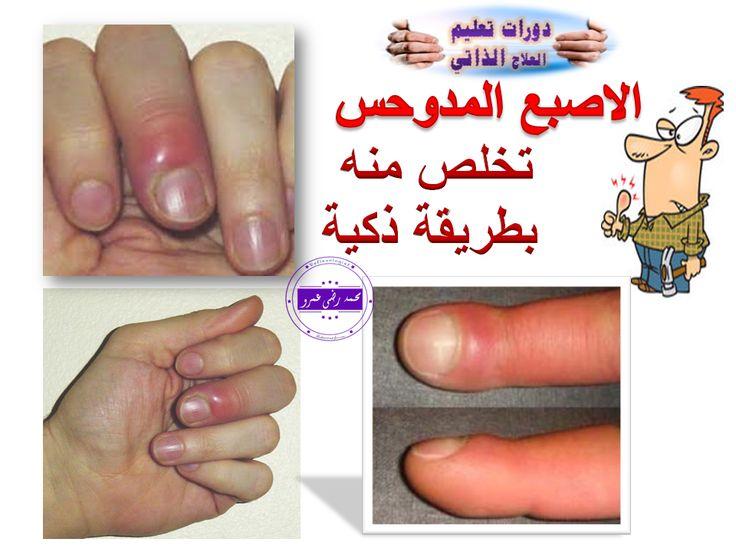 Pin By Zainab Altaweel On الطب البديل Thumbs Up Thumb