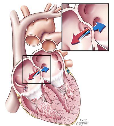 Atrial Septal Defect (ASD) - Cleveland Clinic