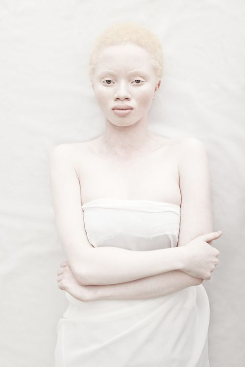 Justin Dingwall : Albus  Albus, a beautiful photography series that explores the aesthetics of Albinism in contrast with the idealized perception of beauty. Thando Hopa, the model is a South African legal prosecutor and now fashion model, uses her new-found fame to negate the taboo surrounding albinism.