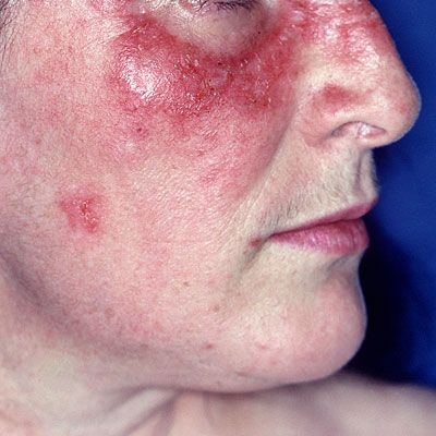Butterfly rash - Lupus can be misdiagnosed as rheumatoid arthritis or another condition, but symptoms that seem like lupus can sometimes be due to a virus.
